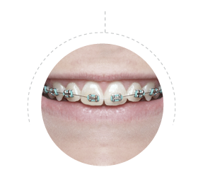 brackets_pediatria