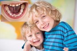 Apiñamiento dental dientes de tiburón