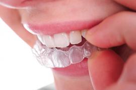 Historia de la ortodoncia-tips